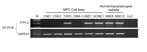 RT-PCR analysis of mRNA expression of TFPI-2 in NPC cell lines and normal nasopharyngeal epithelia (NNE) samples . The data are representative of 2 independent experiments. Glyceraldehyde-3-phosphate dehydrogenase ( GAPDH ) and water were used as internal and blank controls, respectively.