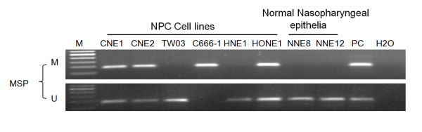 Methylation status of the TFPI-2 promoter region in NPC cell lines and normal nasopharyngeal epithelia (NNE) . The data are representative of 2 independent experiments. In vitro -methylated DNA was used as a methylation-positive control and DNA from normal lymphocytes was used as an unmethylated-positive control. Water was included as a blank control. MSP: methylation-specific PCR; U: unmethylated alleles; M: methylated alleles. PC: positive control.