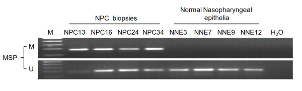 Methylation-specific PCR analysis of the TFPI-2 promoter region in NPC primary tumors and normal nasopharyngeal epithelia (NNE) . Four NPC primary tumors (NPC 13, 16, 24 and 34) and 4 NNE (NNE3, 7, 9 and 12) are shown as examples. U: unmethylated alleles; M: methylated alleles. The data are representative of 2 independent experiments.
