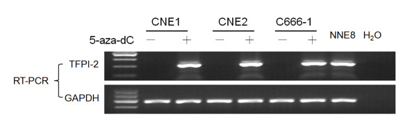 Treatment with 5-aza-dC restores <t>TFPI-2</t> expression in 3 NPC cell lines . TFPI-2 mRNA expression level was evaluated by RT-PCR. GAPDH was amplified as an internal control. NNE8 was used as positive control. A water blank control was also included.