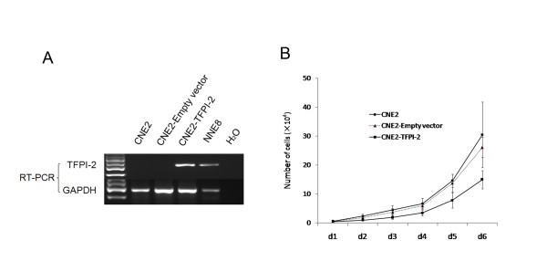 TFPI-2 inhibits NPC cell proliferation . A: RT-PCR validation of stable transfectance of CNE2-TFPI-2 or CNE2-Empty vector. B: Proliferation curves of CNE2 cells, stable transfectants of CNE2- TFPI-2 and CNE2-empty vector. Cells were counted every 24 h for 6 days.