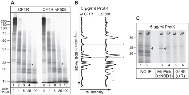 Minimal and local misfolding of ΔF508 CFTR. (A) Both CFTR and ΔF508 CFTR were translated  in vitro  in the presence of  35 S-methionine and cysteine and semi-permeabilized HT1080 cells for 60 min. Cells containing radiolabeled CFTR proteins were washed, lysed in Triton X-100, and prepared for limited proteolysis using increasing concentrations of proteinase K. The proteolytic digests were analyzed by 12% SDS-PAGE. The conformational difference between wild-type CFTR and ΔF508 CFTR is indicated by an arrowhead. (B) Relative intensities of all protease resistant fragments from a total 5 µg/ml Proteinase K digest, as in Figure 1A, were determined by total lane quantitation (Quantity One software Biorad). The y-axis represents electrophoretic mobility in 12% SDS-PA gel and the x-axis the relative intensity of the protease resistant fragments. The horizontal lines indicate the structural differences as described in A. The horizontal line indicated with an asterisk represents yet unidentified changes in the proteolytic pattern as a result of the ΔF508 mutation. The bracket represents small proteolytic fractions detected in both mutants. (C) Wild-type and ΔF508 CFTR were synthesized as in a, were subjected to 5 µg/ml proteinase K and NBD1-originated fragments were immunoprecipitated with polyclonal antibodies directed against NBD1 (Mr Pink) or against the R-region (G449). Arrowhead marks the NBD1-related fragment.