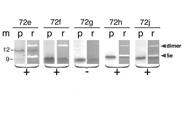 <t>5e</t> RNA binding activities of polypeptides 72 e, 72 f, 72 g, 72 h and 72 j . Purified his-tagged polypeptides 72 e to 72 j were incubated with in vitro transcribed 5e SRP RNA and <t>Ni-NTA</t> magnetic agarose beads as described in the Methods. The bound protein and RNA were analyzed by SDS PAGE followed by staining of the same gel with Coomassie blue (lanes labeled p) and Ethidium bromide (lanes labeled r). Molecular mass markers in kDa are shown in lane m. Plus signs indicate the formation of complexes, the minus sign below 72 g indicates that this polypeptide was unable to bind. Variable amounts of a material which probably represented 5e SRP RNA dimers were observed (arrow heads).
