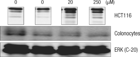 Comparison of the change in the cyclin E protein in human colonocytes and in HCT116 colon cancer cells after incubation for 24 hours with deoxycholic acid based on a Western blot analysis. ERK, extracellular signal-regulated kinase.