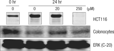 Comparison of the change in the cyclin A protein in human colonocytes and HCT116 colon cancer cells after incubation for 24 hours with deoxycholic acid based on a Western blot analysis. ERK, extracellular signal-regulated kinase.