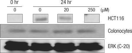 Comparison of the change in the cyclin D1 protein in human colonocytes and HCT116 colon cancer cells after incubation for 24 hours with deoxycholic acid based on a Western blot analysis. ERK, extracellular signal-regulated kinase.