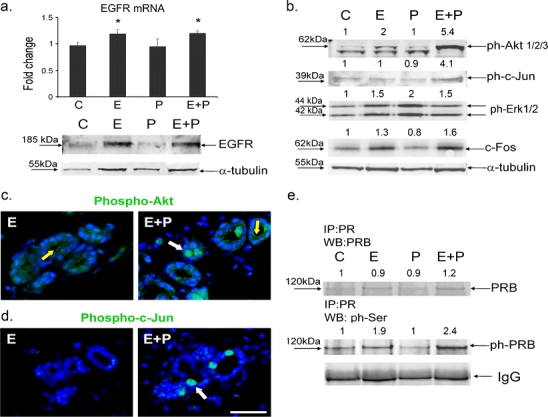 Hormonal regulation of EGFR signaling. Mammary glands were obtained from OVX animals treated with vehicle (C), with E alone, P alone, or E+P. a Real-time PCR analysis of EGFR mRNA and immunoblot analysis of EGFR protein expression. Bars represent the mean ± SEM fold increase. * P