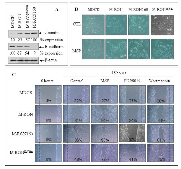 Regulatory effect of RON160 and RON E5/6in on EMT-like activities in MDCK cells : A) Effect of RON, RON160, and RON E5/6in on epithelial/mesenchymal protein expression. Proteins (50 μg per sample) from cell lysates prepared after 72 h incubation were subjected to Western blot analysis using antibodies specific to vimentin and E-cadherin, respectively. Actin was used as the loading control. B ) Effect of RON, RON160 and RON E5/6in on cell morphological changes. MDCK, M-RON, M-RON160 and M-RON E5/6in cells were cultured for 24 h and then stimulated with 2 nM of MSP for 48 h. Cell morphological changes were observed under Olympus Inverted microscope and photographed. C ) Effect of RON, RON160 and RON E5/6in on spontaneous or MSP-induced MDCK cell migration. Cell monolayer was wounded as previously described [ 29 ] and stimulated with or without 2 nM of MSP for 16 h. Chemical inhibitors such as PD98059 (10 nM, specific to MAP kinase) and wortmannin (50 μg/ml, specific to PI-3 kinase) were added simultaneously. The wounded area covered by migrated cells was measured and shown as % of the covered space. Data shown here are from one of three experiments with similar results.