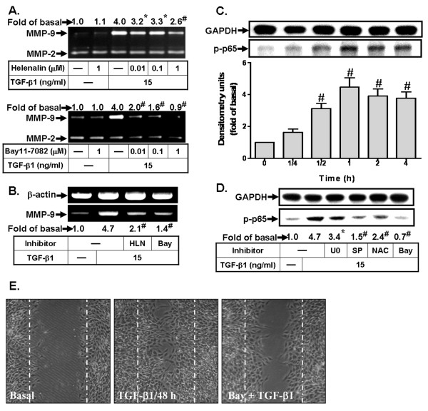 NF-κB is involved in TGF-β1-induced MMP-9 expression and cell migration in RBA-1 cells . (A) Cells were treated with TGF-β1 (15 ng/ml) for 16 h in the absence or presence of helenalin or Bay11-7082. (B) Cells were pretreated with helenalin (HLN, 1 μM) or Bay11-7082 (Bay, 1 μM) before exposure to TGF-β1 for 6 h. The conditioned media and total RNA were collected and analyzed by gelatin zymography (A) and RT-PCR (B). (C) Time dependence of TGF-β1-stimulated NF-κB p65 phosphorylation, cells were incubated with TGF-β1 (15 ng/ml) for the indicated time intervals. (D) Cells were pretreated with U0126 (U0, 10 μM), SP600125 (SP, 10 μM), NAC (100 μM), or Bay11-7082 (Bay, 1 μM) for 1 h before exposure to TGF-β1 for 1 h. Whole cell lysates were analyzed by western blotting using an anti-phospho-NF-κB-p65 antibody. (E) For cell migration, cells were pretreated with Bay11-7082 (1 μM) for 1 h and then incubated with TGF-β1 (15 ng/ml) for 48 h. Representative phase contrast images are shown for 48 h (n = 3). Data are expressed as mean ± SEM (C) or mean (A, B, D) of three independent experiments (n = 3). * P