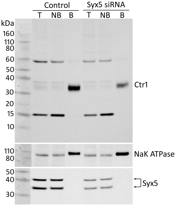 Syx5 suppression reduces the amount of hCtr1 at the plasma membrane of Hek293 cells. Hek293 cells stably expressing Ctr1-myc were treated with scrambled negative control or Syx5 siRNA. Cell surface proteins were isolated following biotinylation using biotin-streptavidin precipitation prior to western immuno-blotting. Ctr1was detected with an anti-c-myc antibody. Syx5 knockdown was confirmed with an anti-Syx5 antibody and anti-NaK ATPase was used as control. Total lysate (T), non-biotinylated (NB), and biotinylated (B) fractions are shown. Protein bands were quantified with densitometry. Two species of Syx5 were detected and Syx5 knockdown reduced the amount of this protein in total cell lysate to approximately 33% of control siRNA treated cells. An hCtr1 monomer of approximately 35 kDa was detected in the biotinylated fraction. Densitometric analysis of hCtr1 protein intensity relative to NaK ATPase, revealed that Syx5 knockdown reduced the about of hCtr1 at the cell surface to approximately 20% of control siRNA treated cells.