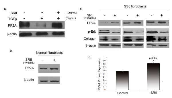 Autocrine transforming growth factor (TGF)β signaling regulates protein phosphatase 2A (PP2A) expression in scleroderma (SSc) fibroblasts . (a) Normal dermal fibroblasts were pretreated with recombinant transforming growth factor β soluble receptor II (SRII) (10 ng/ml) for 1 h and then treated with 5 ng/ml of TGFβ for 24 h. Western blot analysis was used to determine PP2A levels. (b) Normal and (c) SSc dermal fibroblasts were treated with SRII for 24 h after serum deprivation. Cells were collected and total protein levels of PP2A catalytic subunit were analyzed by western blot. In SSc cells, cell lysates were also analyzed for phospho-extracellular signal-regulated kinase (ERK)1/2 and type 1 collagen. β Actin was used as a loading control. (d) Bar graph shows quantification of PP2A protein expression after treatment of SSc fibroblasts with SRII; * P