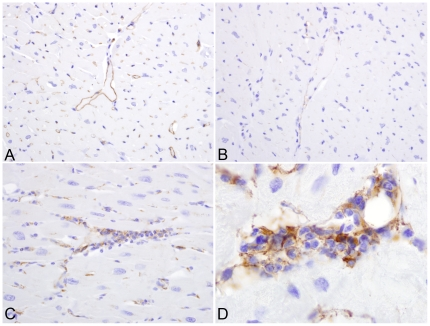 ICAM-1 expression in myocardial sections. IHC for ICAM-1, localizing increased ICAM-1 expression to endothelial cells in non-inflamed myocardium of SIV positive, untreated rhesus macaques (A) as opposed to SIV infected monkeys that received CART (B). Increased ICAM-1 expression was also localized to mononuclear inflammatory cell infiltrates in animals that received antiretroviral therapy (C). Higher magnification of inflammatory foci (1,000X) (D). Immunoperoxidase <t>immunohistochemistry,</t> with <t>DAB</t> chromogen (brown) and hematoxylin counterstain.