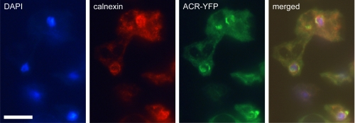 Visualization of ACR-YFP and calnexin by immunofluorescence. Axenically grown acr − /ACR-YFP cells were harvested in exponential phase and triple stained with (i) a polyclonal rabbit-anti-GFP antibody, followed by FITC conjugated donkey anti-rabbit <t>IgG;</t> (ii) a monoclonal mouse-anti-calnexin antibody ( 24 ) followed by <t>Alexa</t> Fluor® 594 conjugated goat anti-mouse IgG; and (iii) DAPI to detect ACR-YFP, calnexin, and DNA, respectively. Cells were photographed through the UV, TRITC, and FITC filter sets of a Leica DMLB2 fluorescence microscope. The merged image was prepared with the Qcapture Pro camera software. Scale bar , 10 μm.