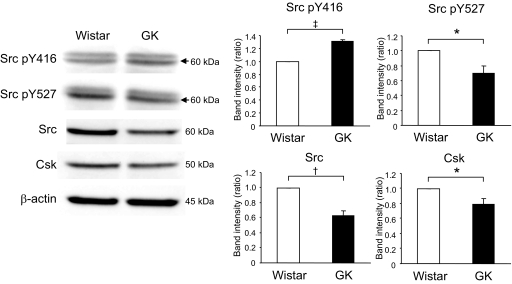 Comparison of expression of Src between fresh Wistar and GK islets. Fresh islets were lysated and subjected to immunoblot analyses. Blots (50 μg of protein) were probed with anti–phospho-Src (Tyr 416 ), anti–phospho-Src (Tyr 527 ), anti-Src, or anti-Csk. The same blots were stripped and reprobed with anti–β-actin, respectively. Intensities of the bands were quantified with densitometric imager. The bar graphs are expressed relative to Wistar islet value corrected by β-actin level (means ± SE). * P