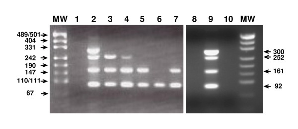Assessment of RNA degradation and RNA performance in RT-PCR by the multiplex endpoint RT-PCR assay . The sizes of the molecular weight markers (MW) are given on the left, whereas the sizes of the TBP amplicons are indicated on the right. Sizes are given in base pairs. Lane 1 and 10 were loaded with the no template control (NTC). Lane 2 and 9 were loaded with the PCR reaction obtained from a cDNA mixture synthesised from RNA extracted from different cell lines and serves as positive control, showing all four PCR amplification products of the expected size. Lane 8 was loaded with the PCR reaction obtained from genomic DNA and served as negative control. Lanes 3 to 7 were loaded with RT-PCR reactions obtained from cDNAs synthesised from total RNA derived from needle microdissected FFPE breast tumour tissues (Lane 3: P1-98-05, replicate 1; Lane 4: P1-98-06, replicate 1; Lane 5: P1-98-07, replicate 1; Lane 6: P1-98-08, replicate 1; Lane 7: P1-98-09, replicate 1).
