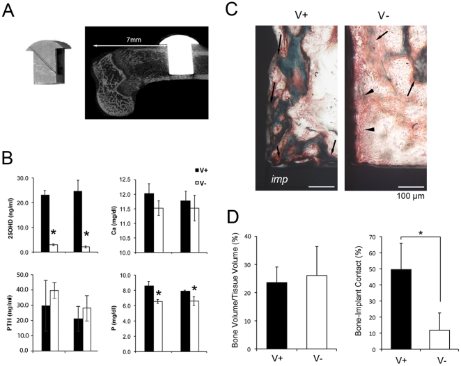 T-shaped implant placed in vitamin D sufficient (V+) and deficient (V-) rats. A . T-shaped experimental implant with a hollow inner chamber was fabricated with Ti6Al4V and the implant surface was treated with dual acid-etching and discrete deposition of HA nanoparticles. T-shaped implant was placed in the osteotomy site of the distal end of rat femur. B . Serum chemistry evaluations of 25-hydroxy vitamin D3 (25D), parathyroid hormone (PTH), calcium (Ca), and phosphorous (P). *: p