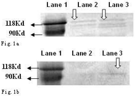 Detection of CagA and VacA protein by Western Blot. a: CagA protein (arrow) b: VacA protein (arrow). Lane 1: Marker; Lane 2: Hp 11638M; Lane 3: Hp11638.