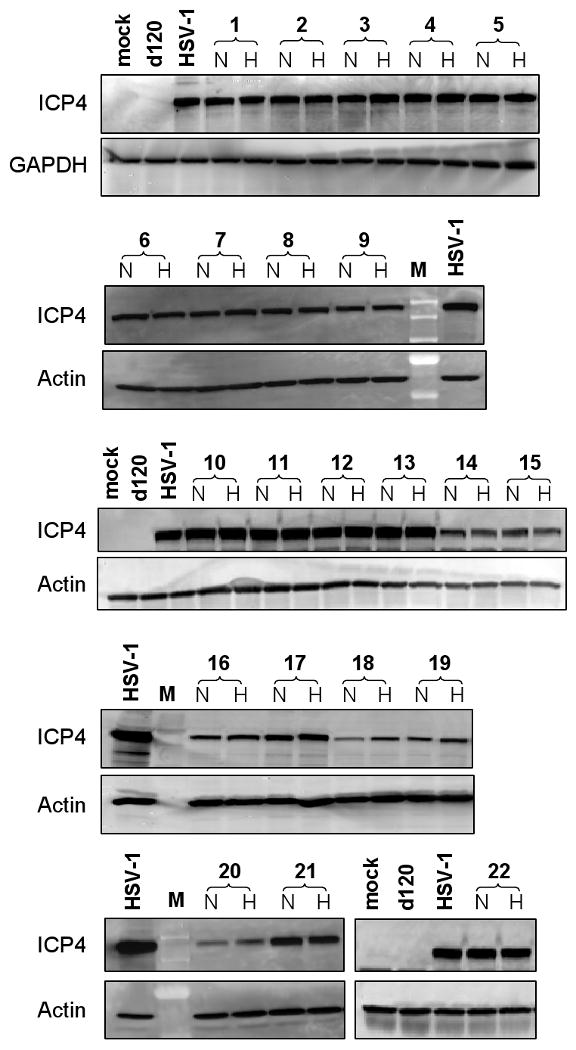Strains HIF-E6L-HSV and HIF-V6R-HSV express full length ICP4 (175 kDa) and expression is not HIF-dependent LN229 cells were infected at MOI 0.05 with the indicated HIF-E6L-HSV (clones 1-5) or HIF-V6R-HSV (clones 6-22) clone and then grown under normoxia (N) or hypoxia (H). As controls, cells were mock- or virus-infected with HSV-1 strain KOS or d120. One day later, 20μg of total cell lysate was western blotted for full length ICP4 (175 kDa) protein expression. GAPDH (36 kDa) or actin (42 kDa) protein expression was used as a loading control. M=molecular weight standard lane.