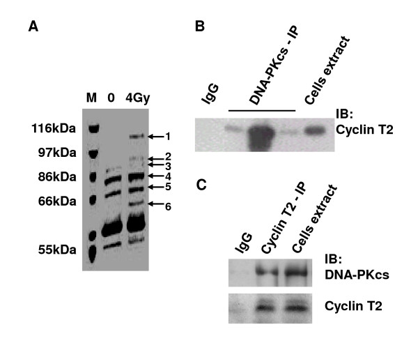 The interaction of DNA-PKcs with cyclin T2 . A: Coomassie bright blue dye staining of SDS-PAGE of the co-immunoprecipitation products of DNA-PKcs antibody. B: Immunoblotting analysis of cyclin T2 was performed on the CoIP products of DNA-PKcs antibody and total extracts of cells. Three DNA-PKcs lanes represent three independent repeat IP experiments. C: Immunoblotting analysis of DNA-PKcs and cyclin T2 was performed on the CoIP product of cyclin T2 antibody and the total extracts of cells. The immunoprecipitation product of Ig G was taken as the blank control.