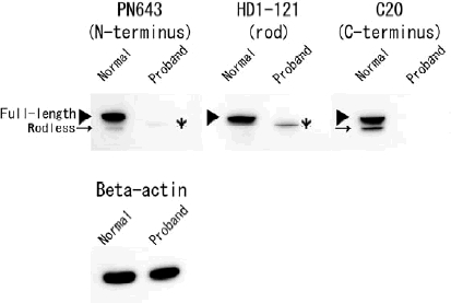 Immunoblot analysis of cultured fibroblasts from the normal human control and the proband. Immunoblot analysis of extracts from fibroblasts of the normal control and the proband by using PN643 against the N-terminal actin- binding domain, HD1-121 against the rod domain and C20 against the C-terminal plectin repeats. Rodless plectin (arrows), detected with PN643 and C20, migrates just below full-length plectin (arrowheads) in normal human fibroblasts. Using HD1-121, only full-length plectin is observed in the normal control. In contrast, fibroblasts of the proband contained smaller proteins than 500-kDa full-length plectin, the putatively truncated full-length plectin (asterisks), which was detected with PN643 and HD1-121. C20 did not react with lysates of the proband's fibroblasts. Equal protein loading was confirmed by reprobing with AC 15 <t>(anti-beta-actin</t> antibody).