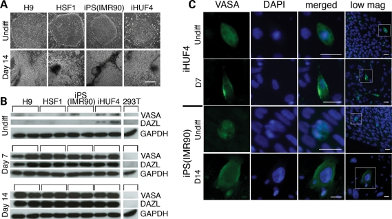 Human ESCs (H9 and HSF1) and iPSCs [iPS(IMR90) and iHUF4] were differentiated as adherent cultures with 20% fetal bovine serum medium supplemented with BMP-4, -7, and -8b. ( A ) Morphology of undifferentiated and differentiated cells; after 14 days of differentiation, cultures appeared confluent, with cell morphology distinct from undifferentiated cells for all cell lines. ( B ) Western blot analysis of germ cell-specific proteins VASA and DAZL in undifferentiated cells and cells differentiated for 7 and 14 days. Increased expression of both VASA and DAZL was observed for all cell lines with differentiation, with the level of expression being similar at day 7 and day 14 time points between all the cell lines. Notably, a low level of VASA and DAZL protein expression was detected for undifferentiated iHUF4 cells and VASA expression in one sample of undifferentiated iPS(IMR90) cells. GAPDH is shown as a loading control and 293T cells are used as a negative control. Two independent samples are shown for each time point for all cell lines. ( C ) The expression and cytoplasmic localization of the VASA protein was also detected by immunostaining for all cell lines after differentiation. In addition, occasional cells in undifferentiated cultures were stained positive for all cell lines. Representative images are shown for iHUF4 and iPS(IMR90) cells; green VASA, blue DAPI, merged image and lower magnification image showing the surrounding cells. Scale bars: 200 µm (A); 50 µm (C).
