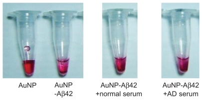 Precipitation pattern of AuNP–Aβ42 incubated with sera from normal and AD patients. Images were taken before TEM analysis in Figure 6 . Abbreviations: AD, Alzheimer's disease; Aβ42, amyloid β42; AuNP, gold nanoparticle; TEM, transmission electron microscopy.