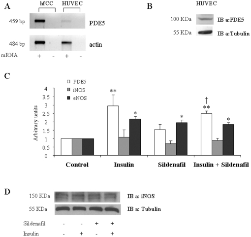 PDE5 and <t>iNOS</t> expression in human endothelial cells. A : PDE5 mRNA expression in HUVEC and hfCC cells: RT-PCR shows that HUVEC express detectable levels of PDE-5 mRNA. Actin was used as control. B : Western Blot analysis for PDE5 protein expression. C : Real time PCR shows that insulin (30 min) and/or sildenafil (5 h) treatments induce PDE5 and <t>eNOS</t> but not iNOS expression * p