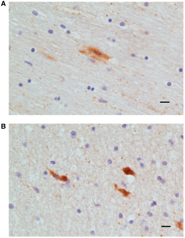 Apoptosis of cortical neurons in traumatic brain injury. ( A ) Caspase-3 positive pyramidal cells in the vicinity of a cortical contusion from a patient with traumatic brain injury (cases 18–95). ( B ) Caspase-3 positive neuronal like cells with dendritic processes in the vicinity of the contusion area of another patient with traumatic brain injury. Scale bar = 10 μm.