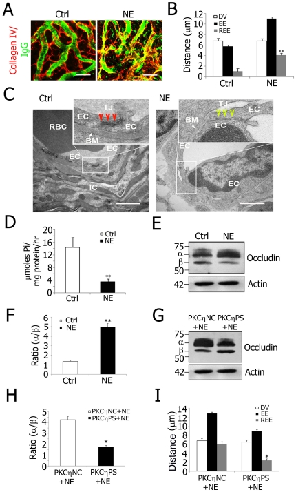 PKCη phosphorylated occludin from decreased Na + /K + <t>-ATPase</t> activity is a mechanism for noise-induced blood-labyrinth barrier disruption. A, Confocal images of IgG leakage from capillaries in disrupted blood-labyrinth barrier of noise-exposed (NE) animals. Stria vascularis capillary networks were labeled with anti-collagen type IV (red) and anti-serum protein IgG (H+L, green) antibodies. IgG was confined in normal stria vascularis capillaries (Left) but not in NE animals (Right). B, REE analysis shows significantly increased blood-labyrinth barrier permeability in NE mice (**P = 0.005