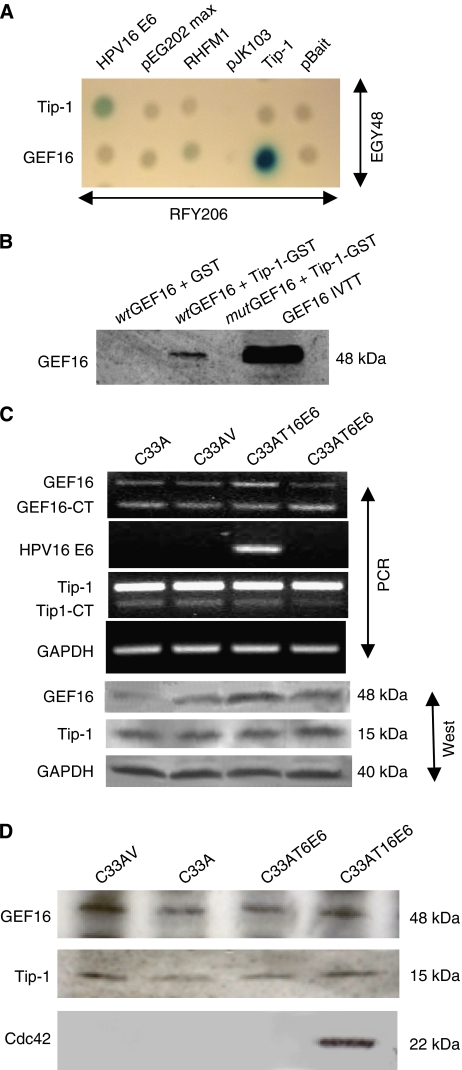 Interactions, regulation and stability of GEF16. ( A ) Yeast mating assay confirming that Tip-1 binds to short carboxyl terminal GEF16 fragments isolated from the primary Tip-1 yeast two-hybrid screen. ( B ) Glutathione transferase pull-down of Tip-1 with IVTT full-length wild-type and mutant GEF16 ( wt GEF16/ mut GEF16). The wt GEF16 contains the PDZ-binding domain ETDV, whereas mut GEF16 has the TDV residues deleted. Tip-1-GST fusion protein and GST control protein were bound to glutathione-sepharose beads. These were mixed with equal amounts of the IVTT wt GEF16 or mut GEF16 proteins, and then washed with binding buffer. Bound proteins were separated by SDS–PAGE and visualised by western immunoblotting with anti-GEF16. The GST-Tip-1 protein bound to the wt GEF16, but did not bind to the mutant form, whereas the GST control did not bind either product. ( C ) Competitive template RT–PCR and western blot analysis of GEF16 and Tip-1 expression in mRNAs and proteins extracted from C33A, C33AV, C33AT16 E6 and C33AT6 E6 cells. mRNA's were reverse transcribed and the resulting cDNAs PCR amplified using primers specific for GAPDH, HPV16 E6, GEF16 and Tip-1 by competitive template PCR. Total proteins were extracted from the same cells, separated by SDS–PAGE, electroblotted and immunoprobed with anti-GEF16 and anti-Tip-1. Anti-GAPDH was used as a loading control. ( D ) Immunoprecipitation with anti-GEF16 from lysates of C33AV, C33AT16 E6 and C33AT6 E6 cells treated with 10 μ of the selective proteasome inhibitor MG132 for 4 h. When immunoprobed with Tip-1 and Cdc42, it can be seen that Tip-1 is associated with GEF16 in both the presence and absence of T16 E6. Cdc42 was detected in association with the GEF16 complex in the presence of HPV type 16 E6, but not in type 6 or vector and parent control cells. (GEF16 has a putative Cdc42 binding site at amino acids 385–391 (QRTLQKL)).