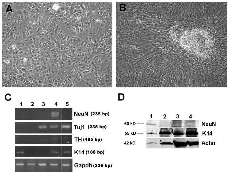 Human skin keratinocytes (HSKs) transiently transfected with pcDNA3-OCT4 can be differentiation into neuronal-like cell types. A) Phase image of HSKs transfected with pcDNA3-OCT4 for 48 hrs, then grown for 12 days in KSFM. B) Phase image of HSKs transfected with pc-DNA3-OCT4 for 48 hrs, then grown for 12 days in neuronal medium from protocol #1. C) RT-PCR showing expression of neuronal nuclear Fox-3 splicing protein (NeuN), neuron-specific class III β Tubulin (Tuj1), tyrosine hydroxylase (TH), keratin 14 (K14), and GAPDH. Lanes 1 = Untransfected HSKs grown for 22 days in KSFM; 2 = Untransfected HSKs grown for 22 days in neuronal medium from protocol #1; 3 = Neuroepithelioma SK-N-MC cell line; 4 = HSKs transfected with OCT4 for 48 hrs, then grown for 22 days in neuronal medium #1; 5 = HSKs transfected with OCT4 for 48 hrs, then grown for 12 days in neuronal medium #2. D) Western blots showing expression of NeuN protein. Lanes 1 = HSKs transfected with OCT4 for 48 hrs, then grown for 22 days in neuronal medium #1; 2 = HSKs transfected with OCT4 for 48 hrs and grown in KSFM for 22 days; 3 = untransfected HSKs grown in neuronal medium #1 for 22 days; 4 = untransfected HSKs grown in KSFM for 22 days. Note, only cells in lane 1 show expression of NeuN protein. KSFM = keratinocyte serum free medium.