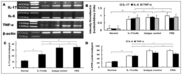 IL-17, IL-6 and TNF-α mRNA transcription in VMC myocardium and protein level in the serum . A. Representative images showing semiquantitative RT-PCR for IL-17, IL-6 and TNF-α transcription. 1. Normal group; 2. IL-17mAb group; 3. Isotype control group; 4. PBS group. B, Densitometric quantitation of the PCR bands showed that, among the IL-17mAb, isotype control and PBS groups, the mRNA expression did not differ with each other; C, The levels of serum IL-17 in different groups, measured by ELISA. The IL-17 protein levels were 11.81 ± 2.66, 22.56 ± 3.68, 33.63 ± 5.50, 33.68 ± 6.13 pg/ml in normal, IL-17mAb, Isotype control and PBS group respectively. D, The levels of serum IL-6 and TNF-α in different group, measured by ELISA. The IL-6 levels were 23.15 ± 8.59, 71.28.50 ± 15.80, 77.81 ± 6.54, 78.18 ± 6.26 pg/ml, and the TNF-α levels were 27.80 ± 4.52, 64.24 ± 6.71, 67.89 ± 5.25, 63.45 ± 2.71 pg/ml respectively. Normal group (n = 8), IL17mAb (n = 7), isotype contro(n = 4), and PBS group(n = 5).* P