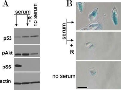 Serum stimulation of etoposide-locked RPE cells results in mTOR-dependent senescence. A-B . RPE cells were treated with 0.5 μg/ml etoposide in the absence of serum as shown in Figure 6 . Then, 10% serum was added either with 10 nM rapamycin (+R) or alone. No serum indicates that cells were continuously incubated with etoposide in serum free medium. 24 h after serum stimulation, cells were lysed and subjected to immunoblotting as indicated ( A ). 4 days after serum stimulation cells were microphotographed ( B ).