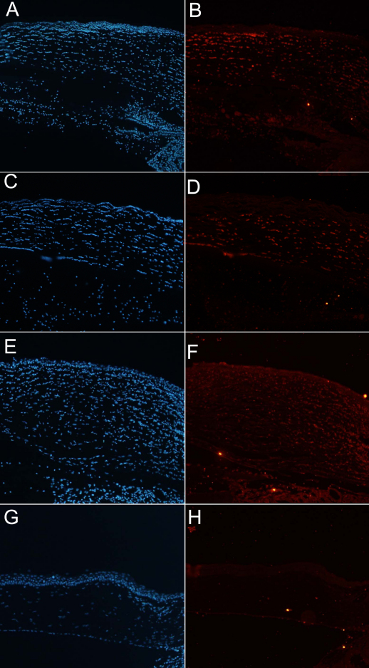 Immunohistochemical staining 48 h after alkali burn at 100× magnification. A , B : The control group; C , D : the amniotic membrane (AM) suspension group; E , F : the serum eyedrop group; and G , H : the comparison group without any manipulation. The figure is representative of the experiments. Cell nuclei were stained with 4',6-diamidino-2-phenylindole (DAPI; blue; A , C , E , F ), and the F4/80 expressions (red) on the section of cornea 48 h after alkali burn were noted ( B , D , F , H ) The amount of F4/80 expression was largest in the control group. However, F4/80 expression is hardly seen in the AM suspension and serum eyedrop groups. Note that there is no expression of F4/80 in the comparison group without any manipulation.