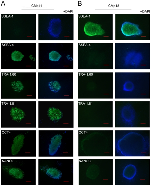 Characterisation of <t>hESCs</t> maintained in CMp11 and media conditioned by passage 18 HFFs (CMp18). Representative immunofluorescent images of hESCs maintained for 5 days in CMp11 (n = 5) and CMp18 media (n = 5) (bar = 100 µm, TRA-1.81 bar = 200 µm). Cells cultured in CMp11 presented well defined colonies with morphology characteristic of undifferentiated cells. In contrast, CMp18 cultured cell were morphologically distinct with colonies lacking smooth and defined edges and a clearing effect from the centre. Consistent with an undifferentiated phenotype, CMp11 cultured cells were negative for the early differentiation marker SSEA-1 (green) and positive for the undifferentiation markers SSEA-4, TRA-1.60, TRA-1.81, OCT4 and <t>NANOG.</t> Cells cultured in CMp18 were positive for SSEA-1 and negative for undifferentiation markers. All cells were co-labelled with the nuclear stain DAPI (blue).