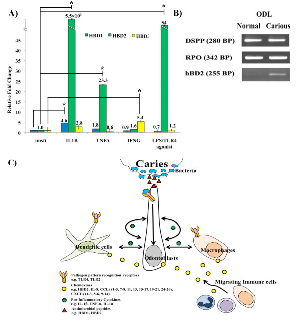 Innate immunity in the odontoblast layer (ODL) . The effect of IL-1β/IL1B, TNF-α/TNFA, IFNγ/IFNG, and LPS on antimicrobial peptide regulation determined by real-time quantitative PCR (A). The effect of caries on HBD2 mRNA expression was detected by semi-quantitative PCR (B). IL-1β, TNF-α, and LPS amplify HBD2 transcription in odontoblast-like cells in vitro . Consistently, caries increase expression of HBD2 mRNA in cells of ODL in vivo . Values are reported as relative fold change in mRNA transcription of unstimulated versus stimulated samples. The data represent means and standard errors from triplicate wells of one experiment and are representative of at least three independent experiments. Asterisks indicate statistically significant changes, with P