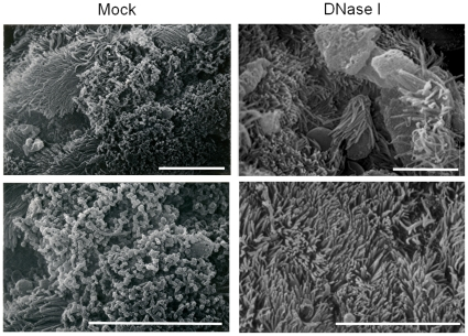 Scanning electron microscopy of mock treated (left) or DNase I treated Bordetella biofilms formed in the mouse nose. Nasal septa were harvested from mice 15 days post-inoculation, excised into two equal parts, treated with either the DNase I buffer (Mock, left panels) or DNase I (right) followed by processing for SEM as described in the Materials and Methods .