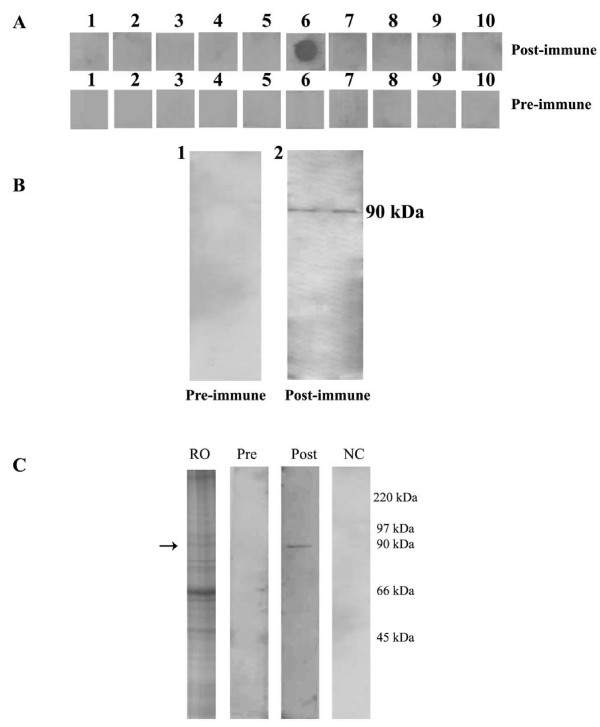 Biochemical characterization of epitope EP6 . Panel (A) depicts dot blot analysis using rabbit polyclonal antibodies to peptides EP6. EP6 in panel A6 shows strong immunoreactivity with the post-immune sera. The pre-immune of the same rabbit did not react to any of the 10 peptides EP1 to EP10 in sequential order. Panel (B): Western blot analysis using rabbit polyclonal antibodies to peptide EP6 with recombinant HSP90 loaded in duplicates. B1: Pre immune serum shows no immunoreactivity. B2: Post immune serum reacts with the recombinant protein. Panel (C): Western blot analysis using the anti-EP6 peptide polyclonal antibodies with crude mice ovarian protein. Lane RO: total mice ovarian extract stained with Coomassie blue stain with an arrow indicating the locus representing the HSP90 protein. Lane Pre: The pre immune serum shows no immunoreactivity. Lane Post: The post-immune sera shows single band reactivity in the lane marked at the 90 kDa. Lane NC: Secondary alone control shows no reactivity.