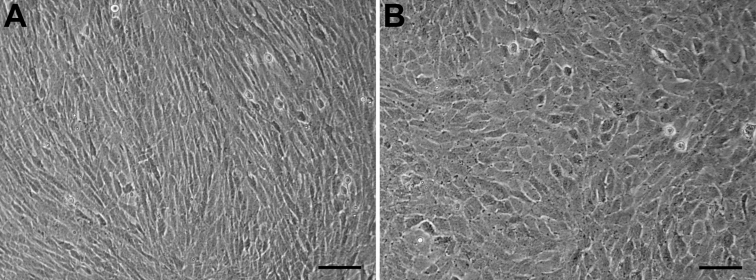 Morphology recovery of HCE cells at passage 101. A : Control HCE cells cultured in 20% FBS-containing DMEM/F12 (1:1) medium, showing the fibroblastic morphology. B : HCE cells cultured in 5% BCS-containing MEM medium, showing the more corneal endotheloid-like morphology. Scale bar: 50 μm.