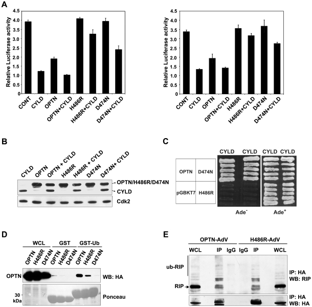 Effect of H486R optineurin on CYLD-dependent inhibition of TNFα-induced NF-κB activity. HeLa cells were transfected with optineurin or its mutants (100 ng) along with or without CYLD (100 ng, left panel and 50 ng, right panel). After 22 h of transfection, the cells were treated with TNFα for 4 h. Luciferase activities relative to untreated control are shown (n = 4). Western blot showing the expression of optineurin and its mutants along with CYLD using HA tag antibody. Yeast strain PJ694A was co-transformed with optineurin or its H486R and D474N mutants and CYLD. Transformants were grown on selection media lacking Ade to assay interaction. Growth on Ade − plate indicates interaction. GST-ubiquitin or GST alone bound to glutathione agarose beads were incubated with lysates of HEK293T cells transfected with wild type optineurin or its mutants. The bound proteins were eluted and immunoblotted with anti-HA antibodies. WCL, whole cell lysates. HeLa cells were infected with adenoviruses expressing HA-tagged wild-type or H486R mutant optineurin. After 30 hrs of infection, the cells were treated with TNFα for 5 min and immunoprecipitations were carried out with HA antibody and analyzed by Western blotting with RIP and HA antibodies.