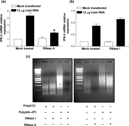 Transfection of total RNA harvested from poly(dA–dT) transfected cells results in IFN- β expression. 293T cells were transfected with 12 μg total RNA extracted from 293T cells that had been transfected with 12 μg poly(dA–dT) for 24 h. Induction of IFN- β mRNA was confirmed to be specific for an immunostimulatory RNA species by treating total RNA with either (a) 0.1 mg RNase A ml −1 or (b) 0.1 U amplification grade <t>DNase</t> I μl −1 . Total RNA was then extracted 24 h post-transfection and real-time qPCR performed for IFN- β . These data were normalized against GAPDH mRNA levels. Error bars indicate the mean± sem (* P
