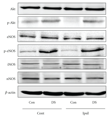 Effects of DS on phosphorylation of Akt and eNOS in brain tissues. Phosphorylation of Akt (p-Akt) and eNOS (p-eNOS) in brain tissues of saline- (Con) and DS-treated mice at 60 min after ischemia. Akt, p-Akt, eNOS, p-eNOS, iNOS, and nNOS protein levels were analyzed by Western blotting ( N = 4). DS promoted Akt and eNOS phosphorylation in both ischemic (ipsilateral, Ipsil) and nonischemic regions (contralateral, Cont) of the brain compared with control.
