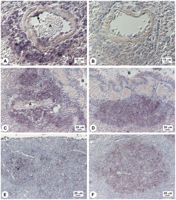 Localization of M3 expression in lung, spleen, and lymph node. Detection of M3 <t>RNA</t> in lung and spleen by in situ hybridization in MHV-68 infected wood mice. A, B: Lung, day 7 p.i.: (A) M3 transcripts detected within lymphocytes in perivascular infiltrates (white arrows) and lymphocytes attached to the endothelial wall (black arrow). A: artery; (B) No signal detected with sense-strand probe (negative control). C, D: Lung, day 12 p.i.: (C) Perivascular and peribronchial lymphocyte infiltrations containing numerous M3 -positive lymphocytes. A, artery; B, bronchioles; (D) Peribronchial, focal follicle-like lymphocyte accumulation with numerous M3 -positive lymphocytes. B, bronchiolus. (E) Bronchial lymph node, day 7 p.i.; lymphocytes showing M3 transcripts are present in lymphatic follicles (within germinal center cells). F, follicle. (F) Spleen, day 14 p.i.; follicle with numerous M3 RNA-positive lymphocytes in the germinal center. Results are representative of numerous tissue sections analyzed from <t>three</t> infected wood mice.