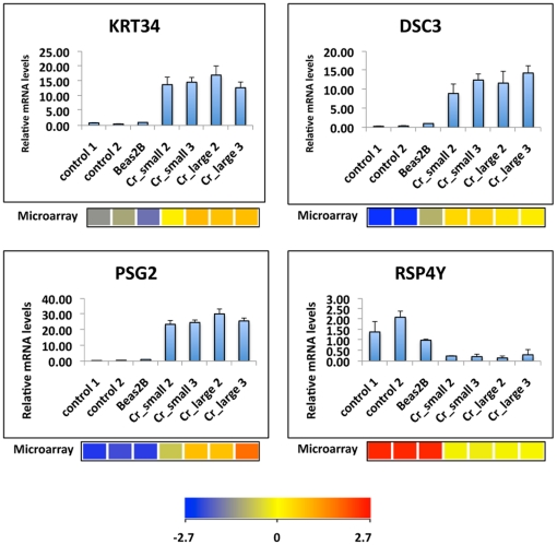 Validation of microarray results by quantitative RT-PCR. Total RNA was extracted from two cell lines each of control, Cr_small, and Cr_large group, as well as parental BEAS-2B cells. Expression levels of KRT34, DSC3, PSG2 and RSP4Y were analyzed by quantitative RT-PCR. Relative gene expression level, normalized to 18s rRNA expression, was presented as fold change to the level expressed in Beas-2B cells. Data are mean ± SD (n = 3). The expression value of each gene determined from the microarray data was listed below the corresponding PCR results. The color bar related color code to the expression value determined after quantile normalization and baseline transformation to the median levels of all samples.