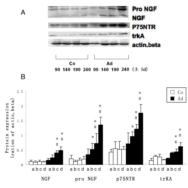 Western-blot analysis of NGF-β, pro NGF, p75NTR and trkA in adenomyosis (Ad) and control (Co) ICR mice uteri . A: Representative Western-blot analysis of NGF-β, pro NGF, p75NTR and trkA in adenmoysis and control mice in different age groups. B: Densitometirc analysis of NGF-β, pro NGF, p75NTR and trkA in adenomyosis and control mice in different age groups expressed as a percentage after actin, beta normalization (n = 5; a = 90 ± 5 d, b = 150 ± 5 d, c = 190 ± 5 d, d = 240 ± 5d; *P