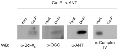 OGC interacts with Bcl-x L and ANT. We performed a <t>co-immunoprecipitation</t> experiment in HEK293 cells using an antibody against ANT, which is an integral component of the MPTP. We were able to detect Bcl-X L , OGC and ANT in the co-immuno precipitant. As a control protein, we chose subunit 1 of complex IV of the electron transport chain, which is also localized to the inner mitochondrial membrane. This control protein did not co-immunoprecipitate with Bcl-x L , OGC and ANT, but was present in the supernatant (input). We obtained similar results by immunoprecipitation with an antibody against Bcl-x L (data not shown). Co-IP: co-immunoprecipitation. WB: western blot.