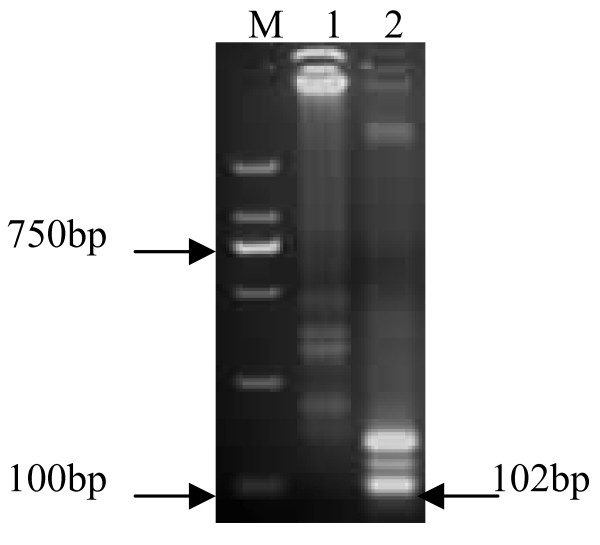 Different Tfi I restriction patterns of RT-LAMP products of vvIBDV Gx and attenuated Gt strains . RT-LAMP products were digested by Tfi I and subjected to a 2% agarose gel. After ethidium bromide staining, DNA band patterns were photographed under a UV transilluminator. Lanes M, DNA marker DL2000 (TaKaRa, China, with 2000, 1000, 750, 500, 250 and 100 bp bands); 1, RT-LAMP product of Gx digested by Tfi I; 2, RT-LAMP product of Gt digested by Tfi I.