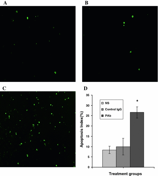 PAb induced apoptosis in vivo as revealed by <t>TUNEL</t> assay. a – c Sections from the tumour-bearing mice treated with NS, control IgG, or PAb, were stained with <t>FITC-dUTP</t> as described in materials and methods (×200). d An apparent increase in the number of apoptotic cells and apoptotic index was observed within the remaining tumours tissue of mice treated with PAb compared to mice injected subcutaneously with control IgG, *represents significant difference between PAb treatment group mice with the NS group and control IgG group mice ( P