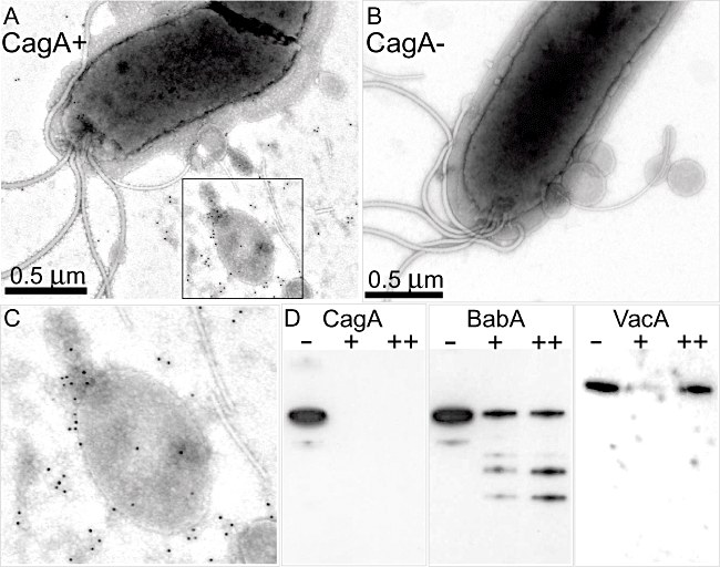 <t>CagA</t> is localized to the surface of H. pylori vesicles. Immunogold-labelling of CagA protein. A. Electron micrographs of H. pylori strain P12. B. Electron micrographs of H. pylori strain P12Δ cagA . Bar length in A and B represents 0.5 µm. C. An enlargement of the indicated area in (A). D. Vesicles of strain P12 treated with Trypsin (+), NP40 (++) or neither (-) as indicated. Samples were analysed by immunoblot using antibodies against BabA, CagA and <t>VacA</t> respectively.
