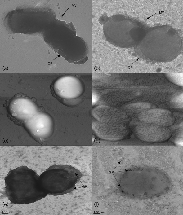 TEM micrographs of W83 (a) and FLL92 (b) showing capsule (CP) with vesicles (MV). AFM micrographs of W83 (c) and FLL92 (d). Immunogold localization of P. gingivalis FimA in W83 (e) and FLL92 (f), visualized by TEM after incubation with anti-FimA serum conjugated to 10 nm gold particles (GP).